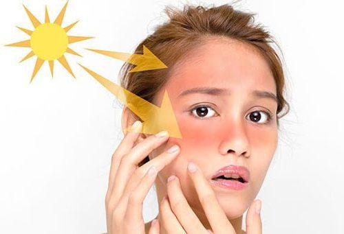 مراقبت از پوست در برابر آفتاب